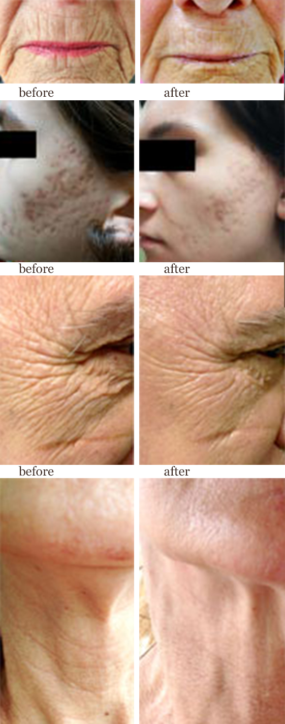 SkinPen - Stimulates your skin's natural ability to repair itself. Results with little or no downtime.