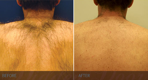 Laser Hair Removal - Back