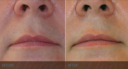 Laser Hair Removal - Lip