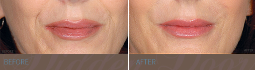 Restylane - Before & After