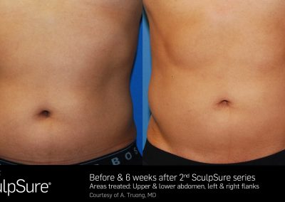 SculpSure-results-1