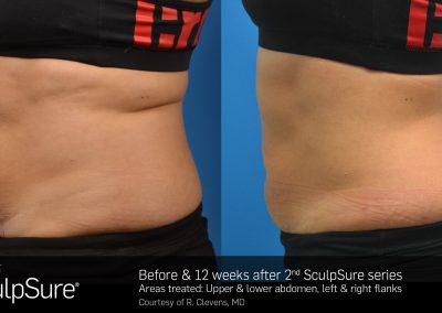 SculpSure-results-2