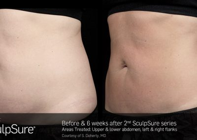 SculpSure-results-3