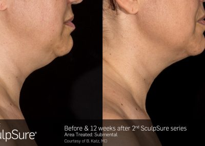 SculpSure-results-4