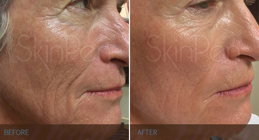 SkinPen - Before & After