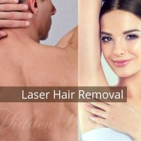 Laser Hair Removal - Hidden Door Medspa
